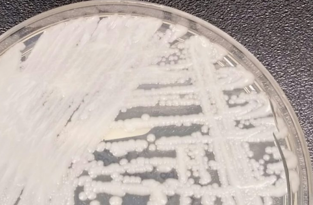 http://www.cdc.gov/fungal/images/candida-auris_2016-250px.jpg